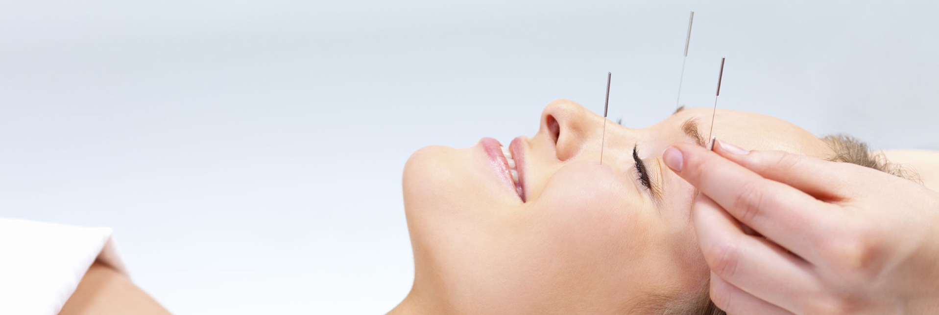 Acupuncture by Dr. Tsan